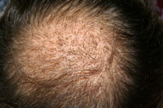 Diprolene My Bosley Hair Transplant Procedure And Recovery